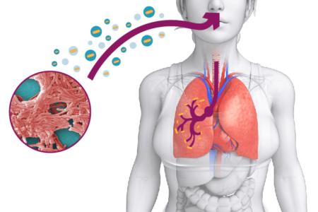 Legionellosi – Lotta ad un'infezione pericolosa