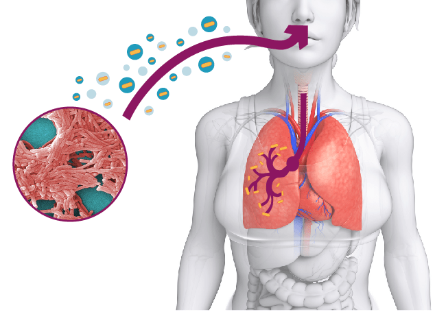 infezione-legionella-respirazione-problemi